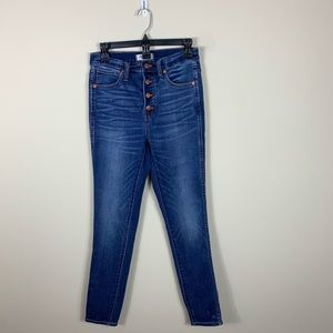 Madewell buttonfly highwasit Jeans